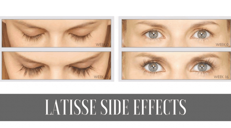 Side effects of Latisse with 5 stories from real users