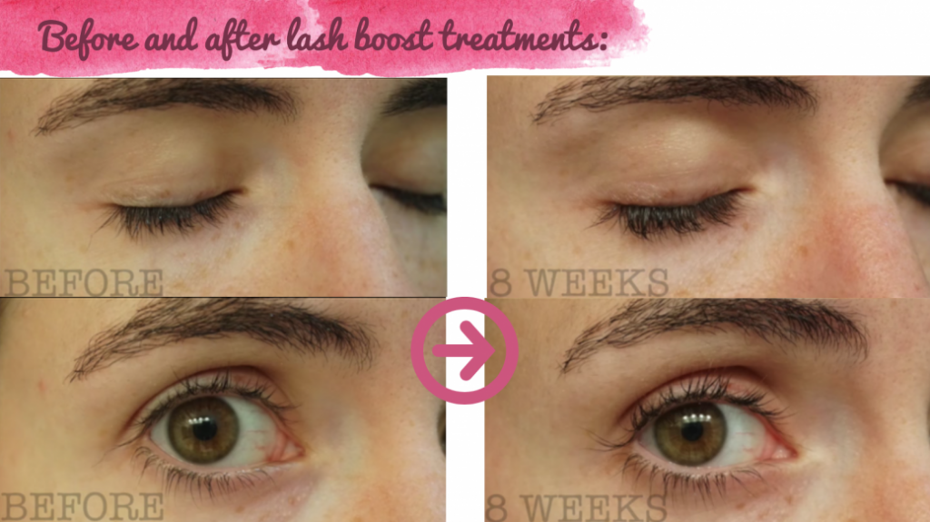 Lash Boost Results In 12 Weeks With Before After Pics From Amanda