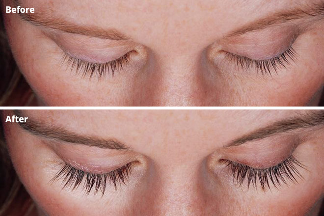 Eyelash Growth serum before and after