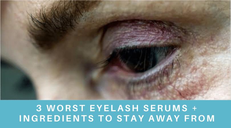 3 Worst Eyelash Serums + Ingredients To Stay Away From